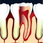 Gingivorragie et homéopathie